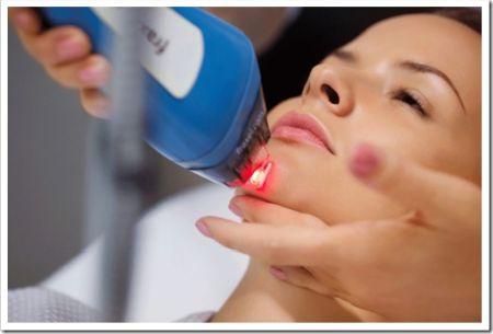Принципы, за счёт которых лазерное лечение становится эффективным